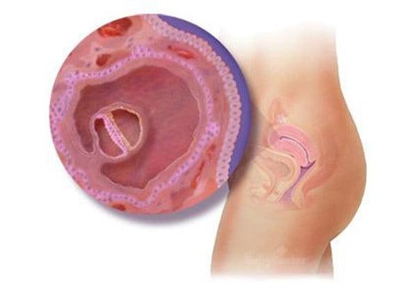 Tuần thứ 4- bé lúc này là một phôi thai. Các bà mẹ sẽ thấy cơ thể mình có những dấu hiệu nghén đấu tiên.