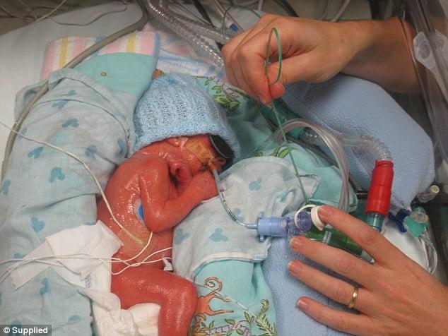 Các bác sĩ đang cố gắng hỗ trợ để giúp bé được sống