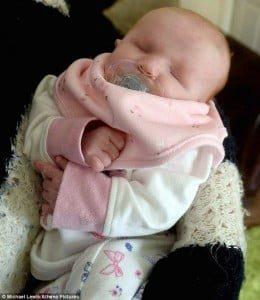 Trường hợp không có mắt thương tâm của bé Daisy. Ảnh: Daily Mail