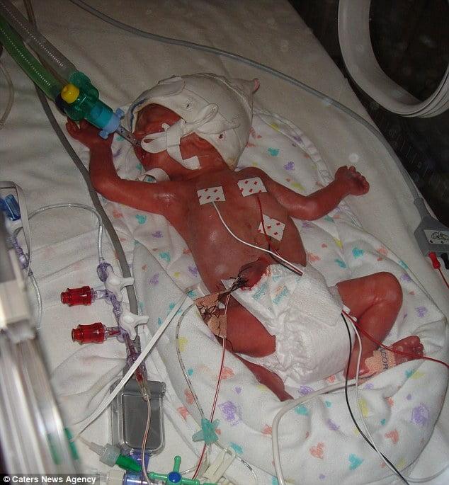 Những nỗ lực nhằm cứu lấy Lily sau khi bé ra đời