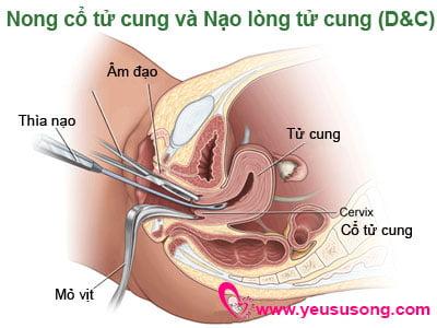 Nong gắp thai