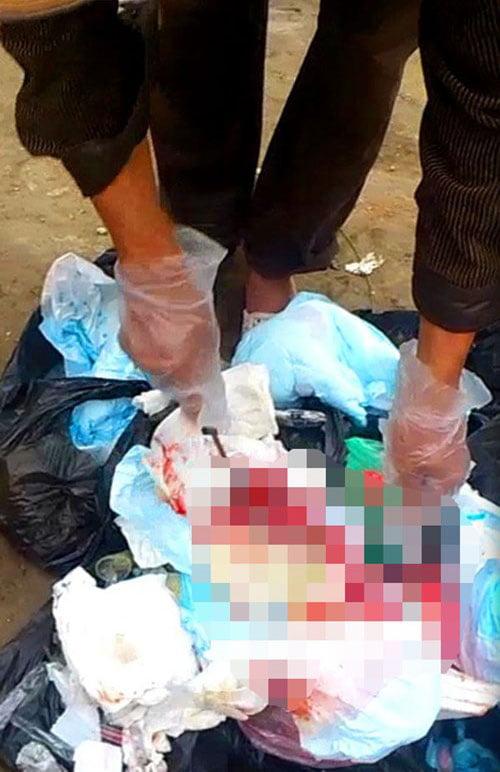 Kiểm tra bên trong túi nylon là những bông băng, dịch truyền, kim tiêm... dính máu với mùi hôi tanh đến nghẹt thở.