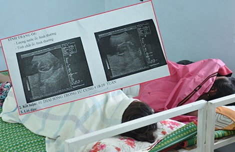 """Nhiều em gái trẻ đi phá thai ở cơ sở """"chui"""". Những cái thai đã 18-19 tuần tuổi vẫn được các phòng khám thai """"chui"""" phá vô tội vạ. Ảnh: TÙNG SƠN"""