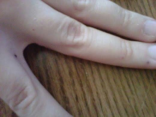 Những nốt đen bắt đầu lây lan sang các ngón tay khác.