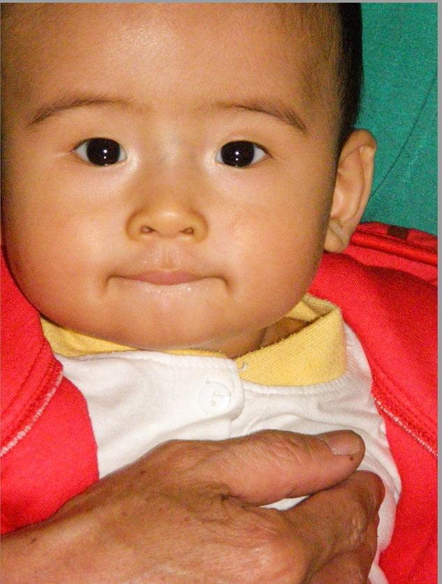 Bệnh nhân ung thư vú được khuyên không nên có con, vì việc sinh con sẽ thúc đẩy bệnh tái phát. Trong trường hợp đã điều trị hoá chất và xạ trị, người ta không dám chắc là tồn dư ảnh hưởng của thuốc không làm hại đến thai nhi. Nghĩa là tồn tại mối nguy hiểm cho cả mẹ và con… Nhưng cuộc sống luôn không theo ý mình sắp đặt. Khi có thai, mọi thứ thật đặc biệt!. Cậu bé này đã được sinh ra vào ngày 24-5-2007, sau hơn 3 năm kể từ ngày mình nhận chẩn đoán mắc ung thư vú.
