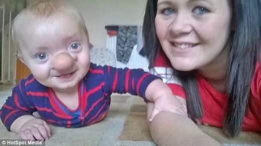 Bé Ollie với nụ cười luôn trên môi cùng mẹ. (Ảnh: HotSpot Media)