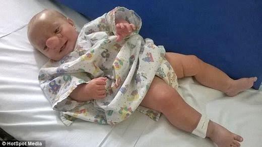 Dù rất đau đớn nhưng cậu bé dũng cảm này vẫn luôn nở nụ cười. (Ảnh: HotSpot Media)