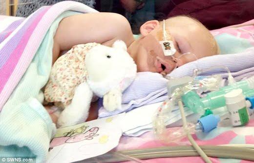 Theo thống kê, căn bệnh này chỉ xảy ra ở tỉ lệ 1/60.000 ca sinh và mỗi năm ở Anh chỉ có hai trường hợp mắc bệnh. (Ảnh: Daily Mail)