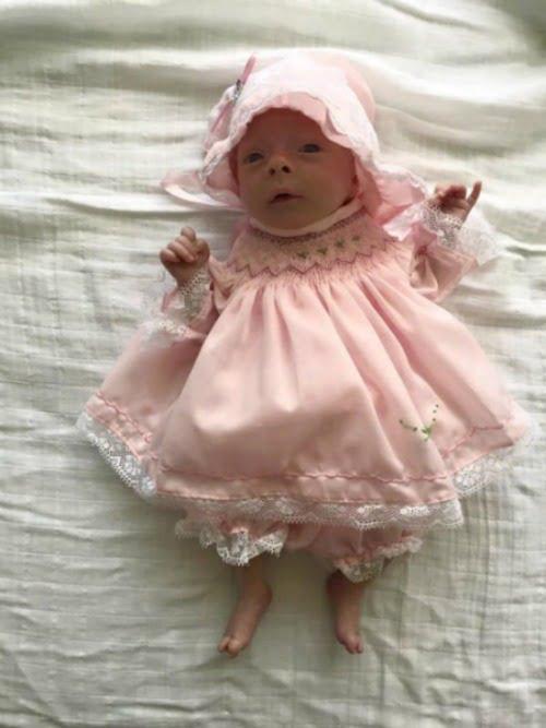 """""""Pearl bị xuất huyết phổi, xuất huyết não nhỏ và trái tim không thể hoạt động bình thường nên những ngày đầu sau sinh chúng tôi luôn sợ hãi rằng có thể mất bé bất cứ lúc nào"""", Chloe Dunstan nói. Cân nặng khiêm tốn nhất song cô bé Pearl dần hồi phục sau hơn 2 tháng chữa trị với sự giúp đỡ tận tình của các chuyên gia và có thể về nhà cùng 2 anh trai."""