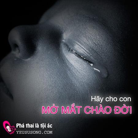 mo-mat-chao-doi