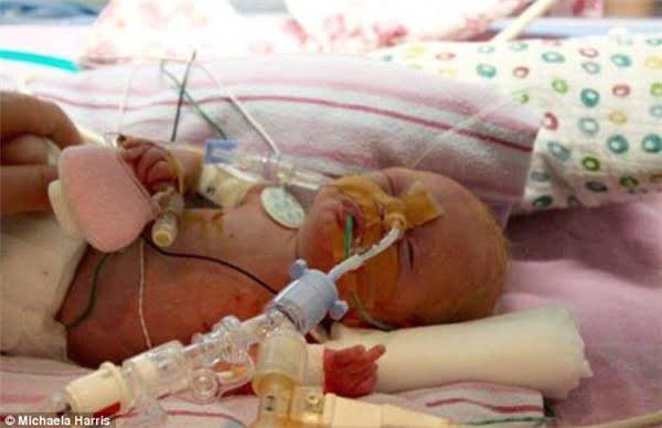 """""""Tôi từng hỏi các nữ hộ sinh rằng con tôi có bao nhiêu phần trăm sống sót, và con số họ đưa ra rất đáng buồn""""… – Harris kể lại. (Ảnh: Daily Mail)"""