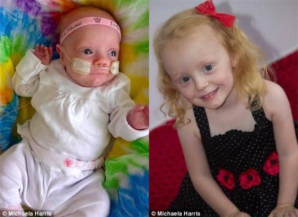 Bé Grace bây giờ đã là một cô bé 4 tuổi đáng yêu và lanh lợi. (Ảnh: Daily Mail)