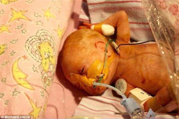 Grace đã phải thở bằng máy ô-xi trong 18 tháng đầu đời nhưng rồi cũng vượt qua kì kiểm tra thính lực, thị lực và một số chức năng khác. (Ảnh: Daily Mail)