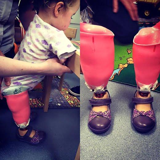 Tháng 11/2015, bé Harmonie-Rose đã nhận được một đôi chân mới để có thể đứng được. (Ảnh: HopeForHarmonie)