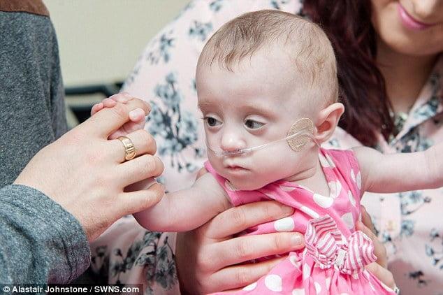 Bé được thở máy suốt 11 tuần vì phổi chưa phát triển đầy đủ, đồng thời được dùng thuốc hỗ trợ thận. Cô bé cũng phải phẫu thuật laser mắt lúc được khoảng 3 tháng do các mạch máu chưa phát triển.