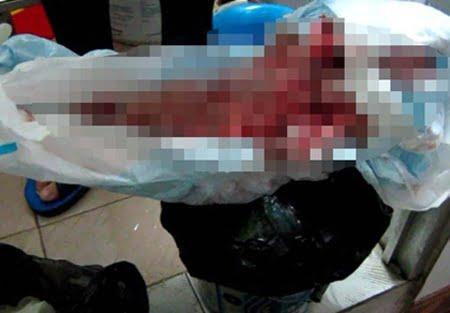 """""""Sản phẩm"""" sau những ca phá thai khủng khiếp tại phòng khám số 934 - 936 Trương Định"""