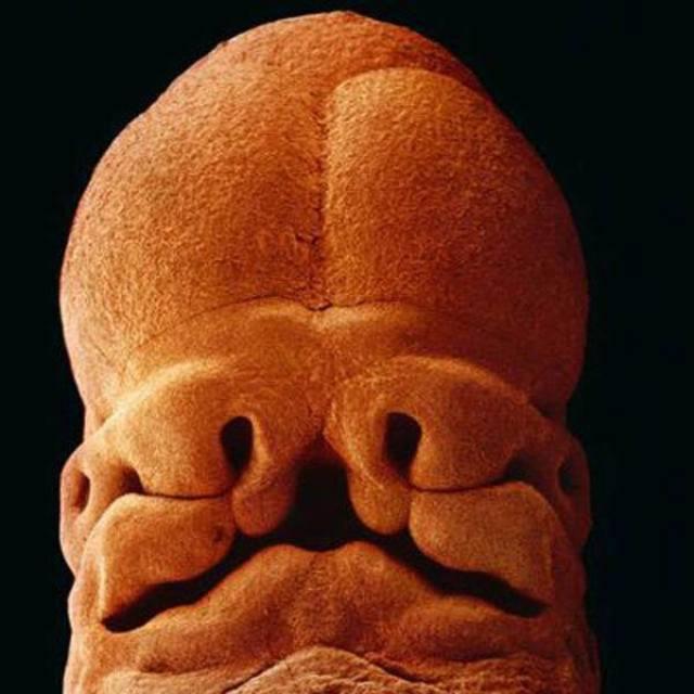 5 tuần, thai nhi dài khoảng 9 mm. Lúc này, bạn có thể nhận ra khuôn mặt của con với hốc mắt, lỗ mũi và miệng.